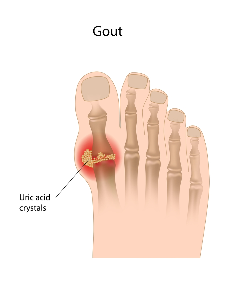 cure high uric acid levels what foods cause gout arthritis foods to eat uric acid